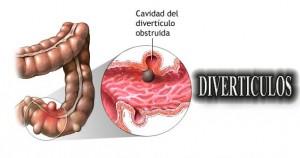 DIVERTICULOS (1)
